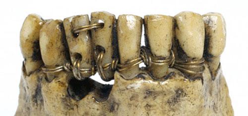 s11-curiosidades-protesis-etrusca